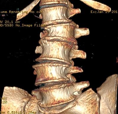 LII csigolyatörés csontablakos 3D CT rekonstrukción