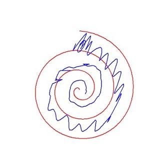 Spirál rajzoló teszt eredménye Esszenciális tremor esetén