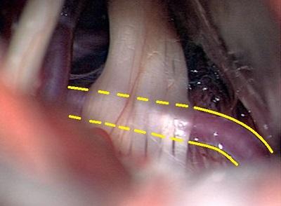 Krónikus csillapíthatatlan fájdalom - arcidegzsába műtéti kezelése. Műtéti mikroszkópon keresztül látható az V. agyideg, nervus trigeminus , mely ki van feszítve egy előtte kersztbe haladó érkacs által