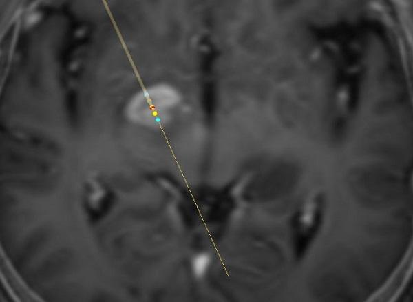 A középagyban elhelyezkedő agydaganat sztereotaxiás biopszia terve Vister-3D programmal
