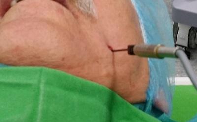 Csillapíthatatlan fájdalom - arcidegzsába miatt végzett Gasser-dúc termolézió