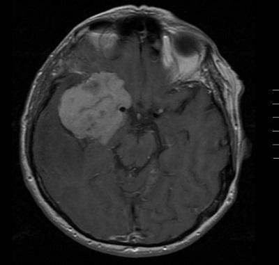 Nagyméretű koponya alapi Agydaganat MR képe