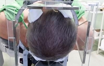 mély agyi stimuláció műtéte szttereotaxiás CT vizsgálattal indul