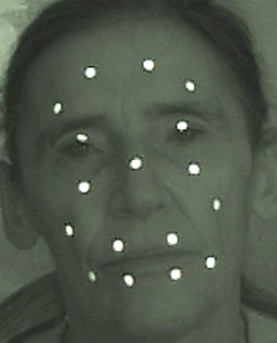 Arc kamerás mozgáselemzése az infra kamerával készült fényt visszaverő markerek elhelezésével