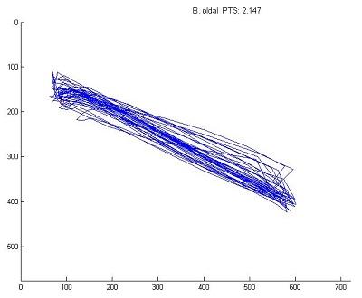 Egészséges alany pontmutagató teszt - a marker mozgását kék vonal mutatja, az automata által adott pontérték is látható