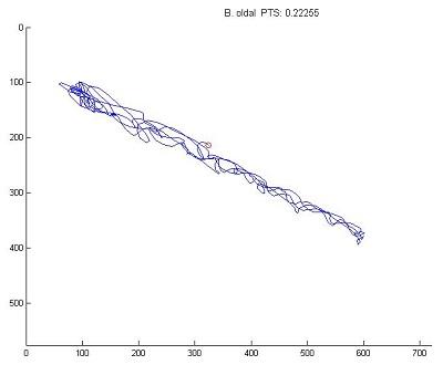 Parkinson-kór esetén a pontmutagató teszt lényeges eltérést mutat, a pontérték sokkal kissebbb és jóval kevesebb vonal látható, a pontérték sokkal alacsonyabb