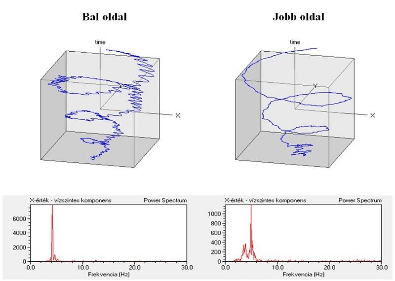 Spirálteszt időtengelyen megjelenítve és a spektrumban a bal oldalon 4 Hz-nél, a jobb oldalon 5Hz-nél látható csúcs