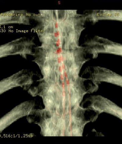 Gerinc CT 3D-s rekonstrukció - Gerincvelő stimuláció - SCS az elektródák érintkezői piros színnel láthatók